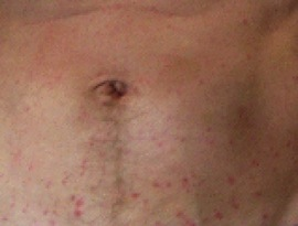 Abdominal picture of biosolid rash Just stop that … biosolid